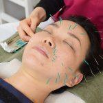 もっと美しくなりたいあなたへ! 「顔の美容鍼灸」を体験取材